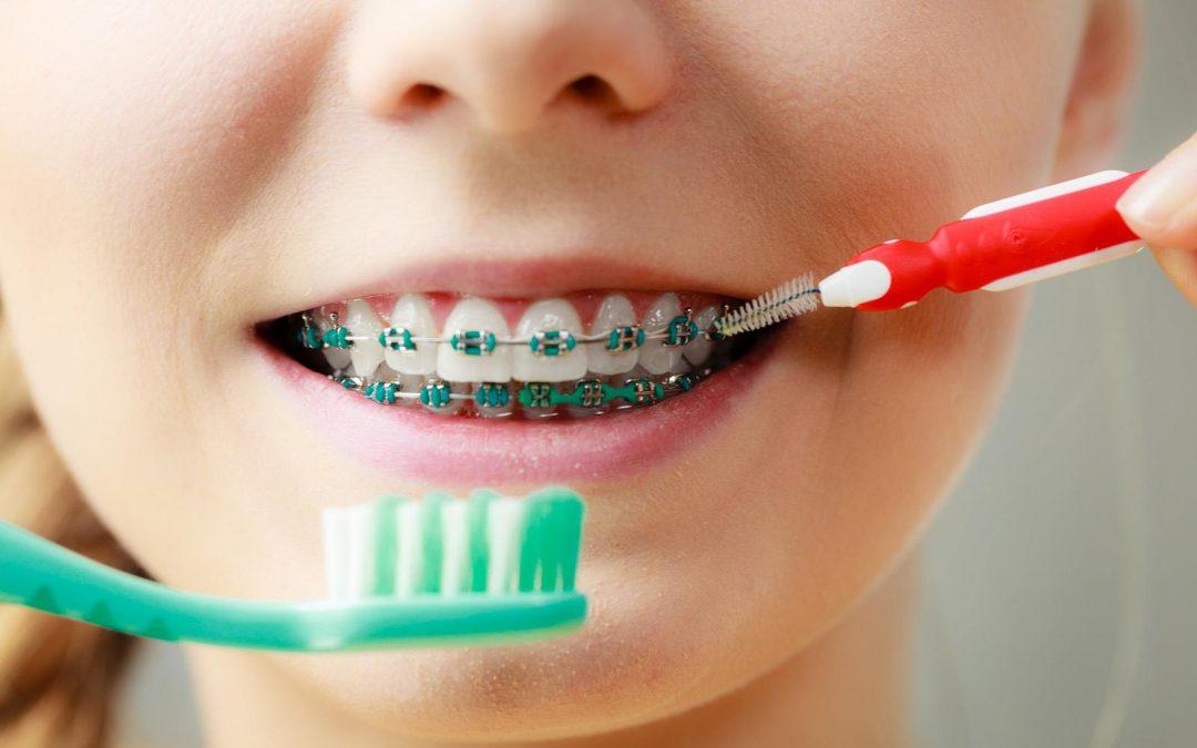 Hukum Kawat Gigi dalam Islam